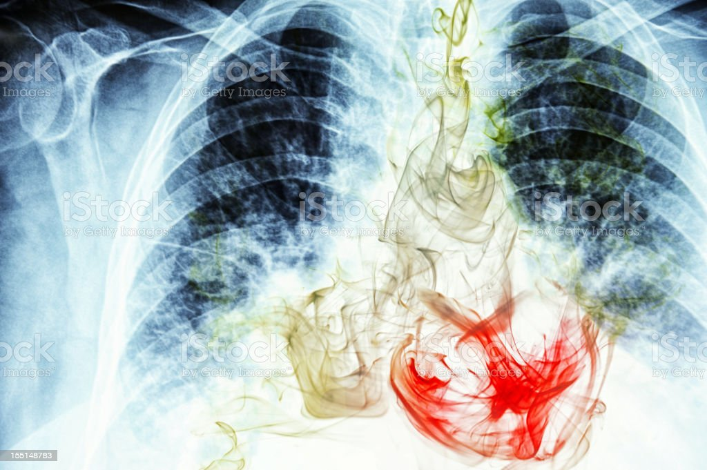 Smoke visible on chest X-ray image stock photo