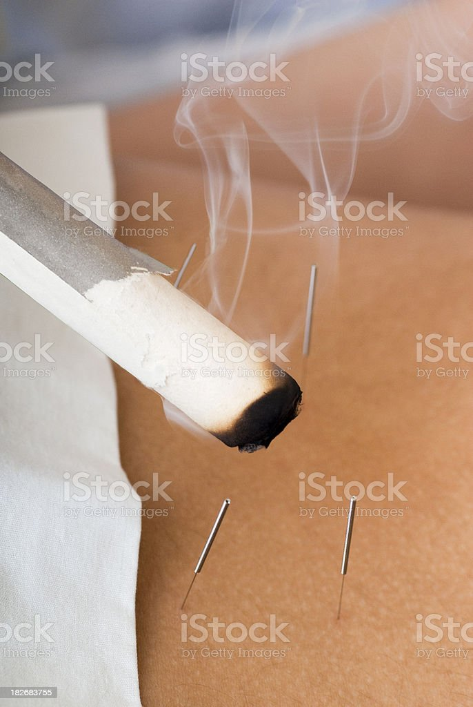 Smoking Moxa Stick - Acupuncture Series stock photo