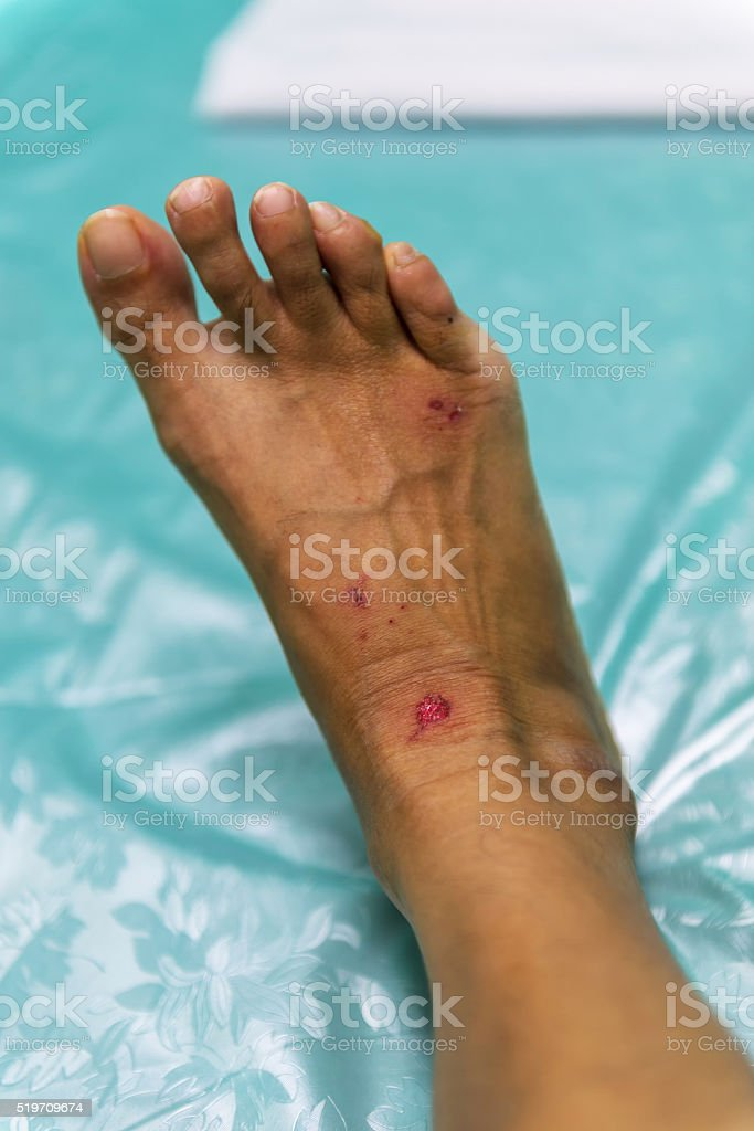 Soft focus and background blur patients with lesions caused stock photo