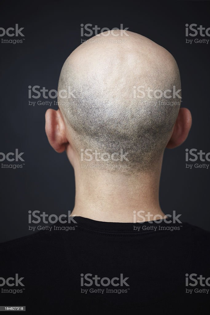 Bald stock photo