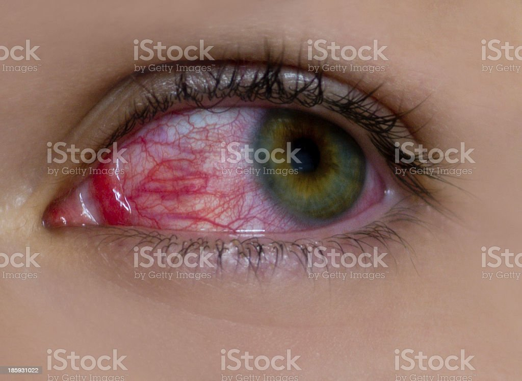 sore eye stock photo