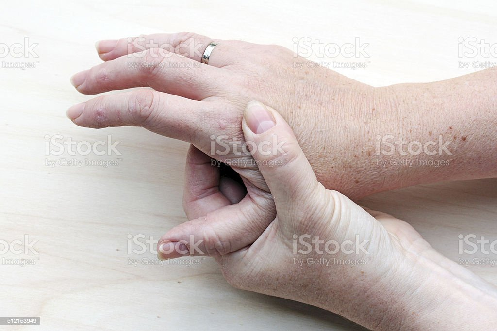 sore hands stock photo