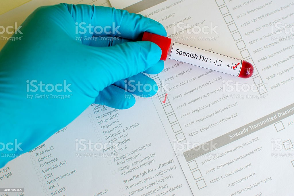 Spanish flu positive stock photo