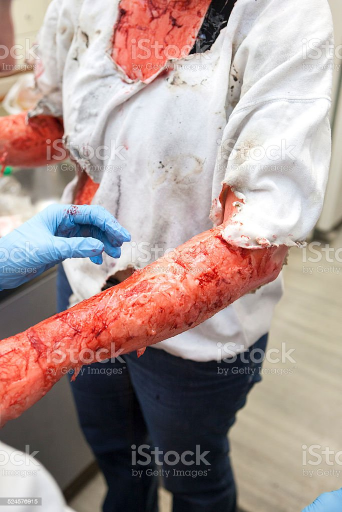 Special effects make-up artists - burn wound stock photo