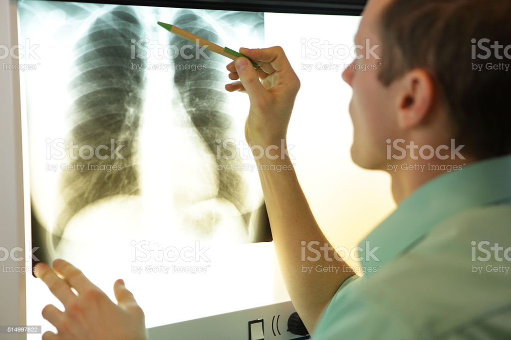 specialist watching image of chest at x-ray stock photo