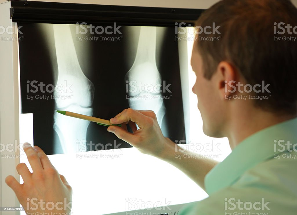 specialist watching x-ray image of knees and lower limbs stock photo