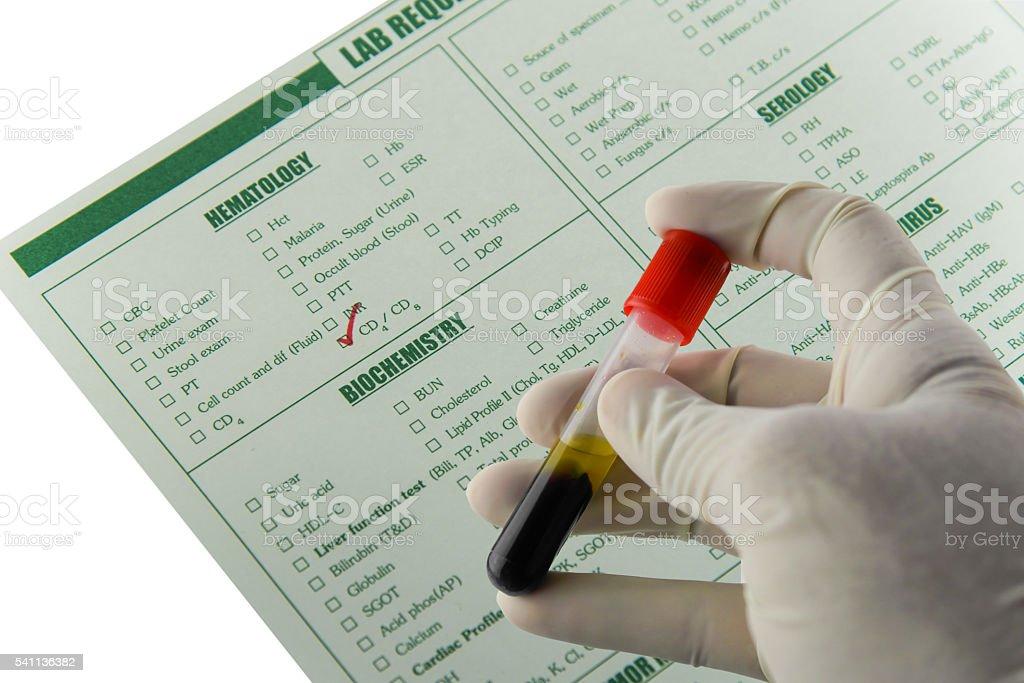 Specimen blood sample stock photo