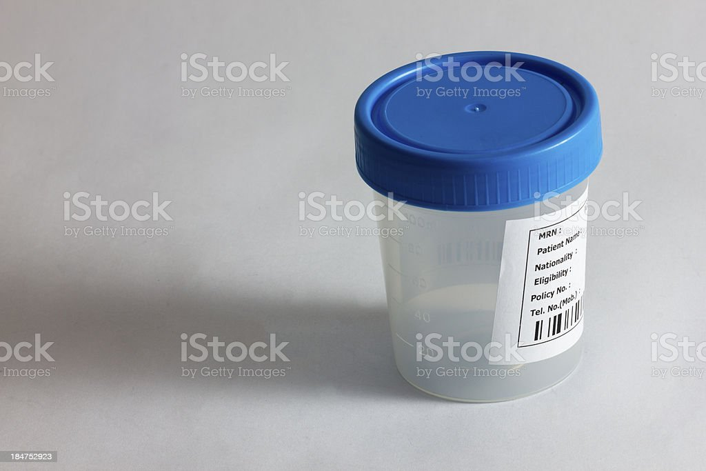 Specimen bottle isolated on white stock photo