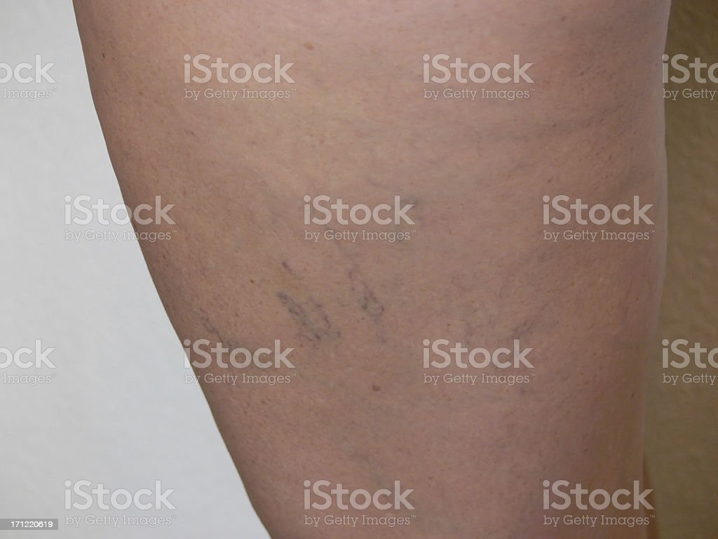 Spider Veins 2 royalty-free stock photo