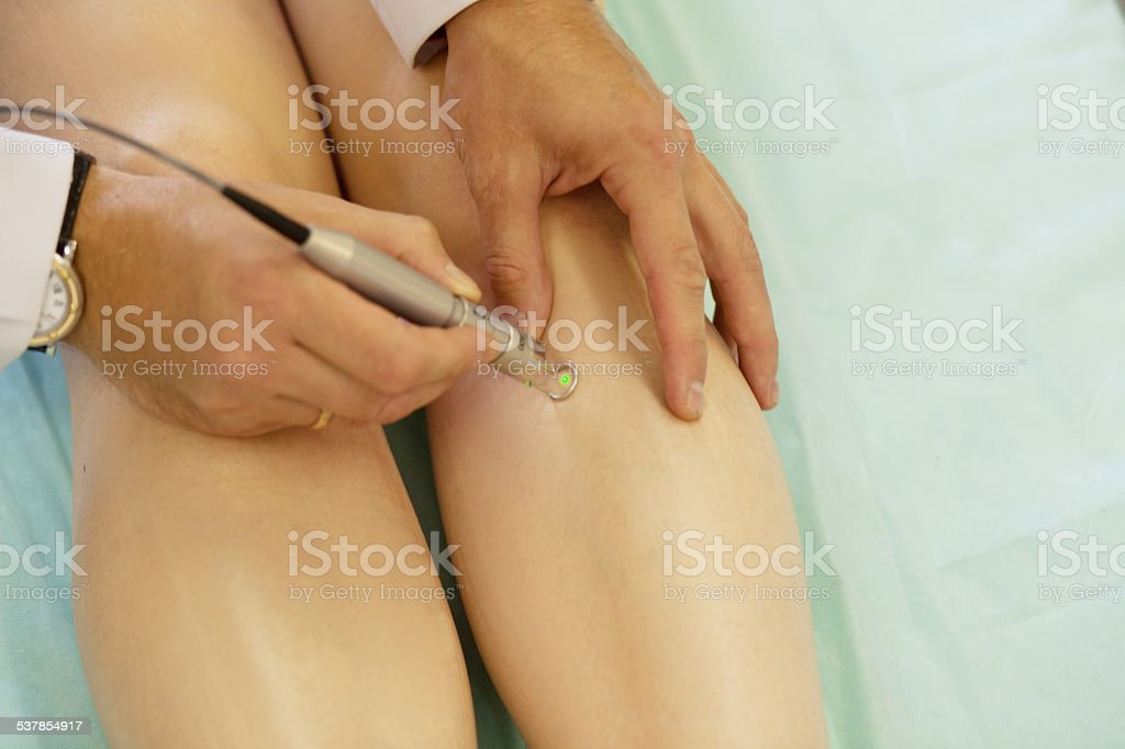 Spider veins medical laser, surgery stock photo