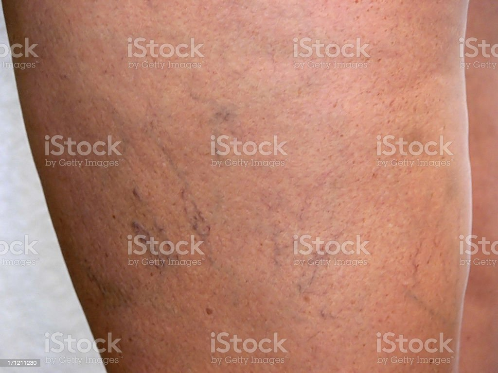 Spider Veins on left thigh royalty-free stock photo