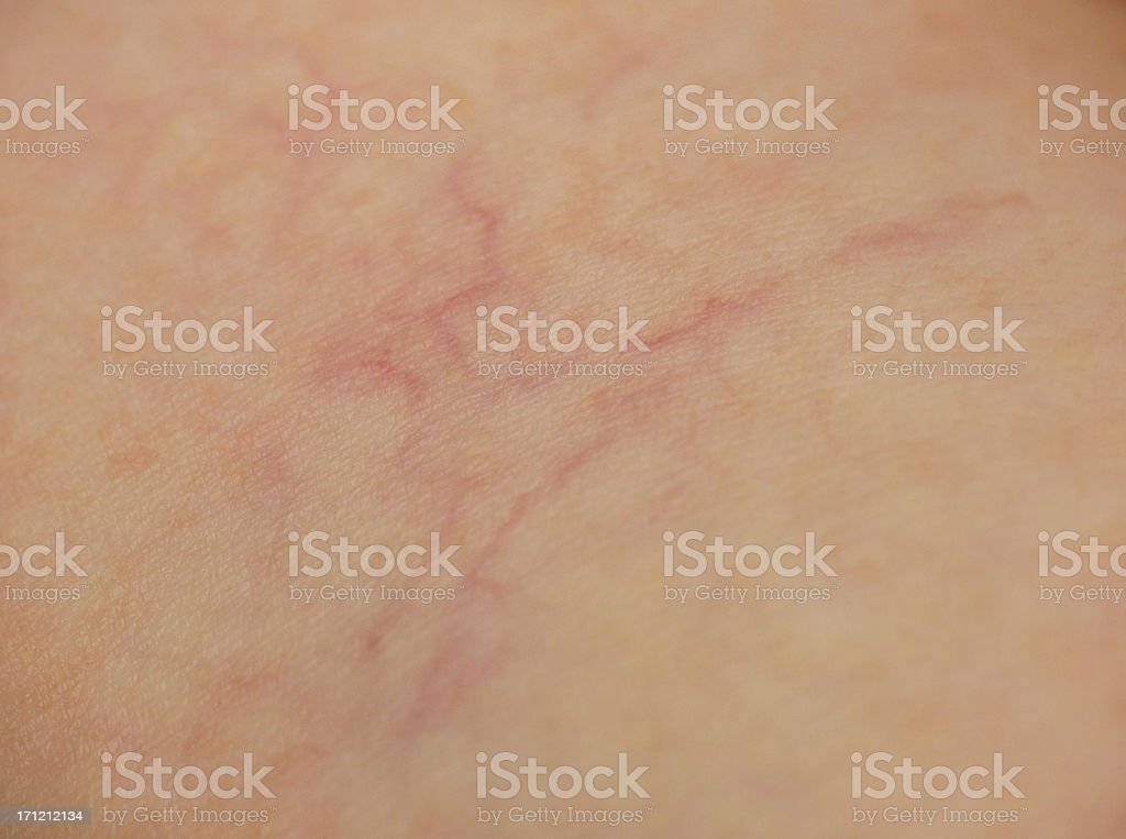 Spider Veins royalty-free stock photo