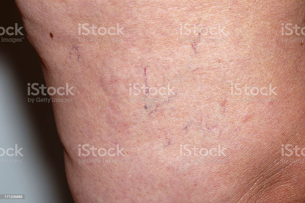 Spider Veins - series royalty-free stock photo