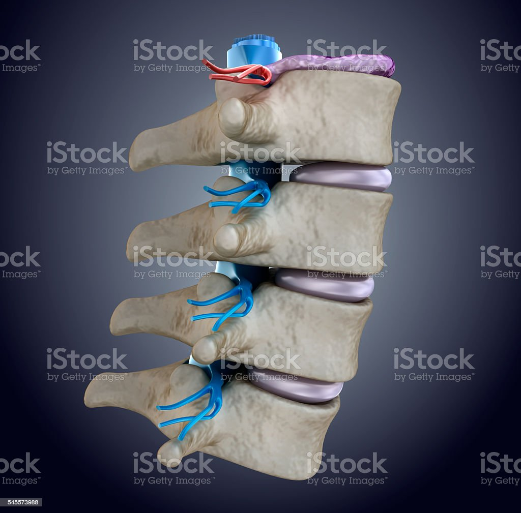 Spinal cord under pressure of bulging disc stock photo