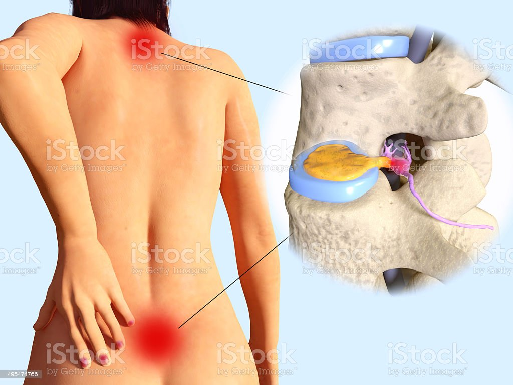 Spinal disc herniation stock photo