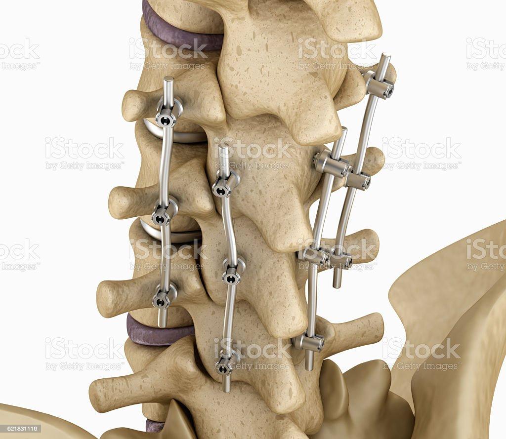 Spinal fixation system - titanium bracket. stock photo