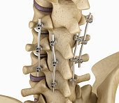 Spinal fixation system - titanium bracket.