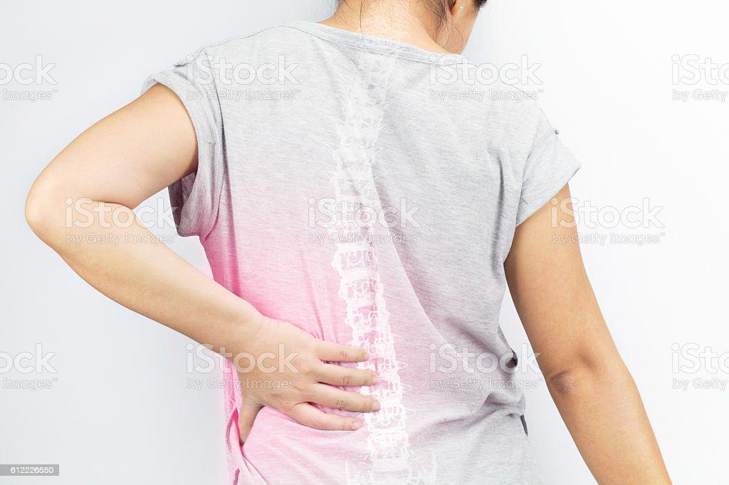 spine bones injury stock photo