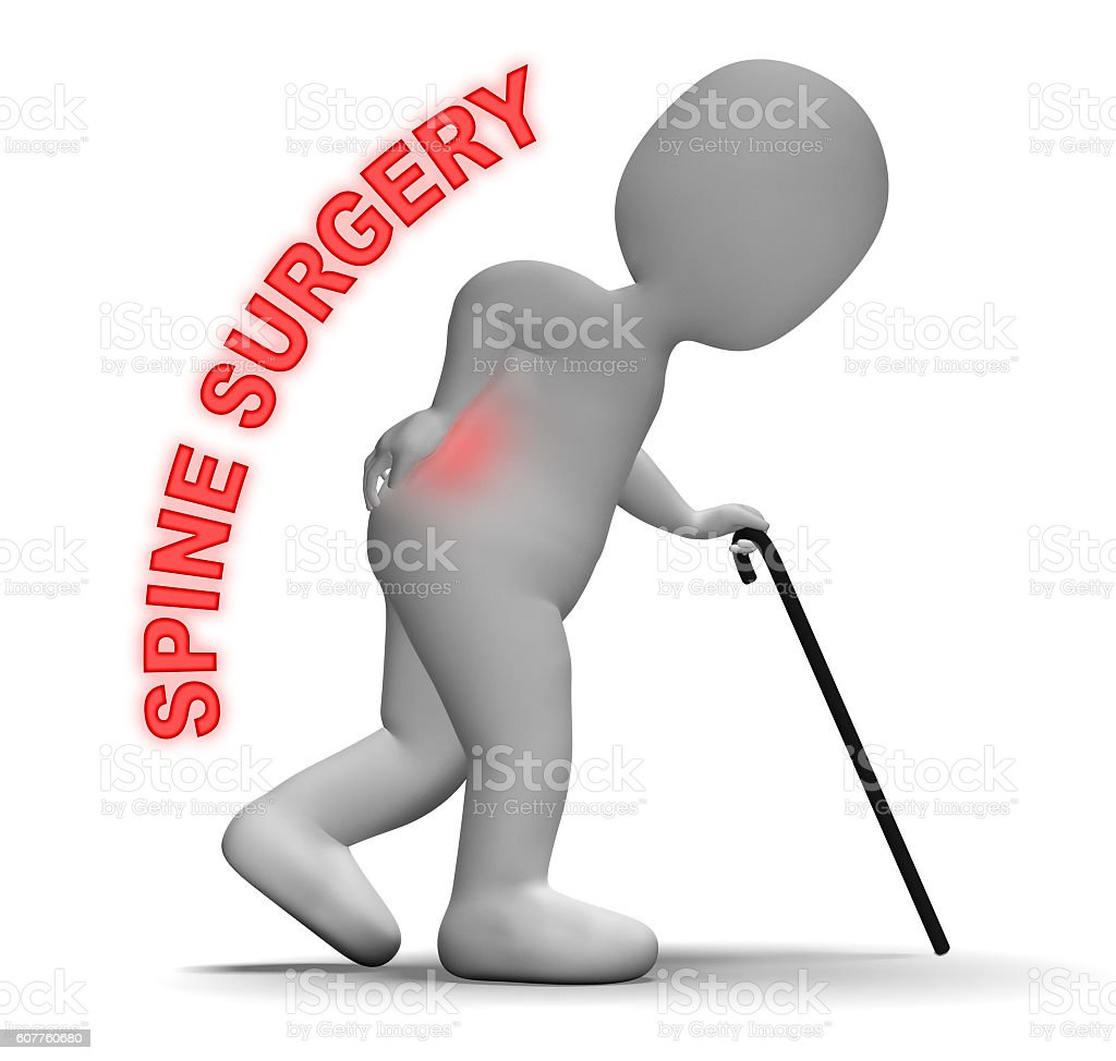 Spine Surgery Means Vertebral Column And Back 3d Rendering stock photo