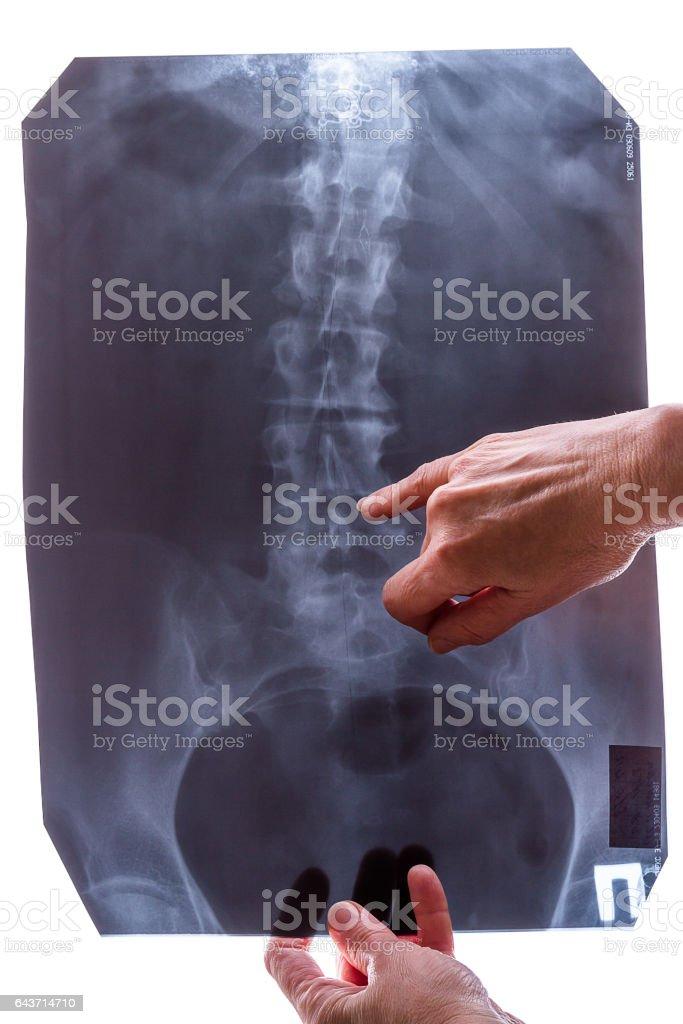 Spine X-ray image stock photo