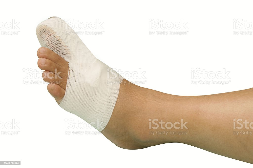 Splint support for  big toe injury stock photo