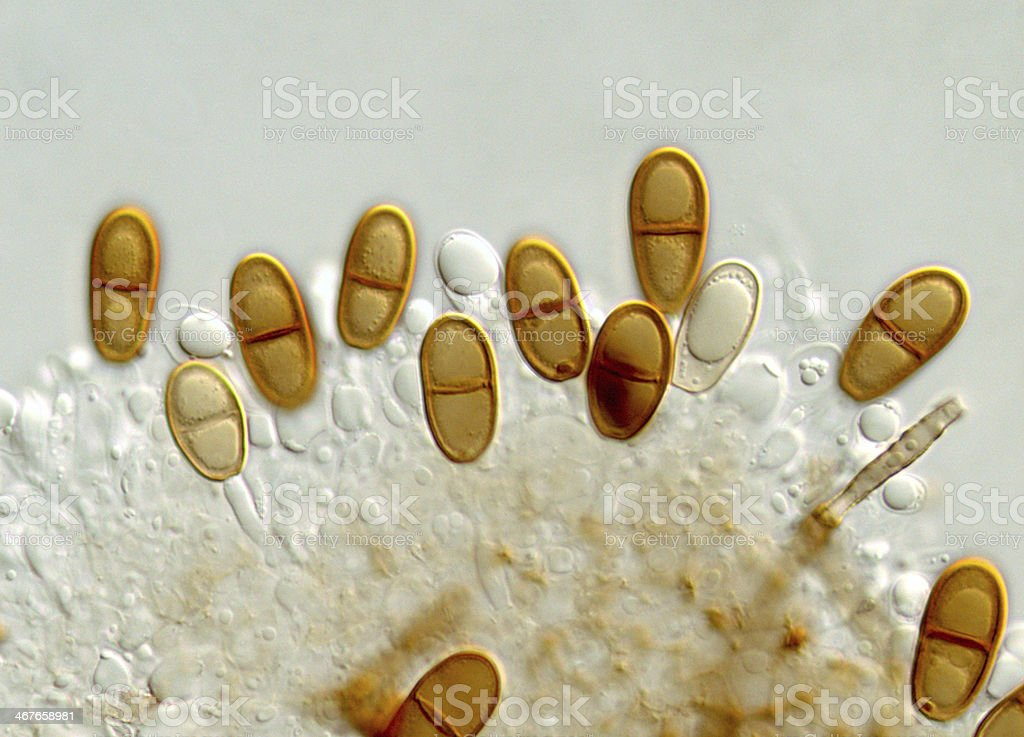 Spores of a Dothiorella species stock photo