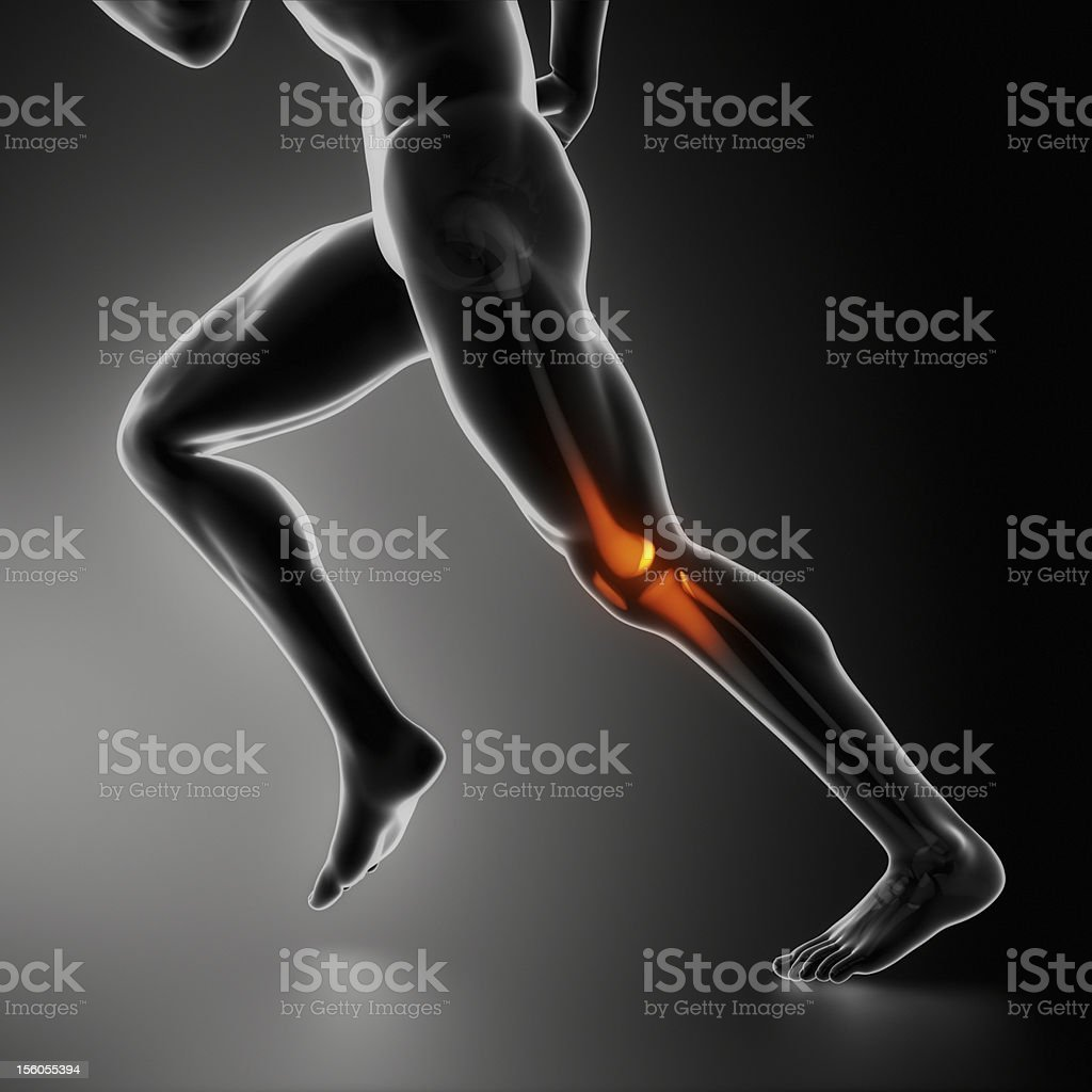 Sports knee injury x-ray concept stock photo