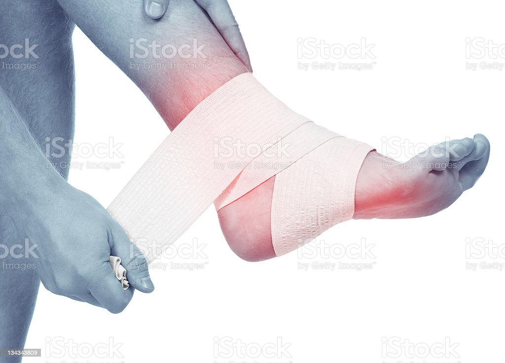 Sports trauma of a foot. Sprained ankle stock photo