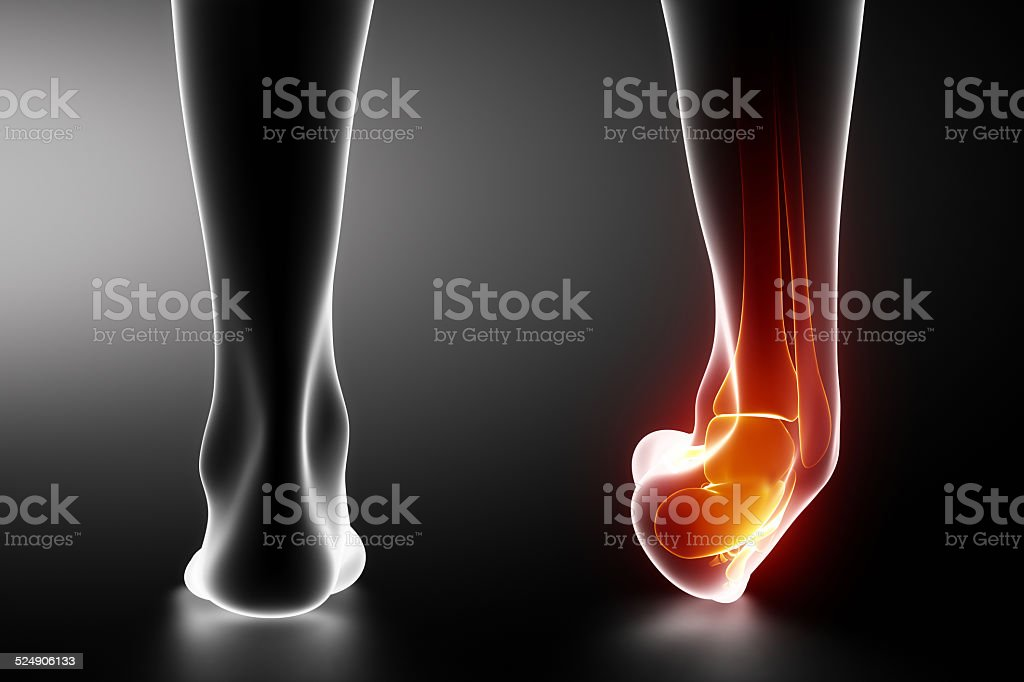 Sprained ankle black x-ray stock photo