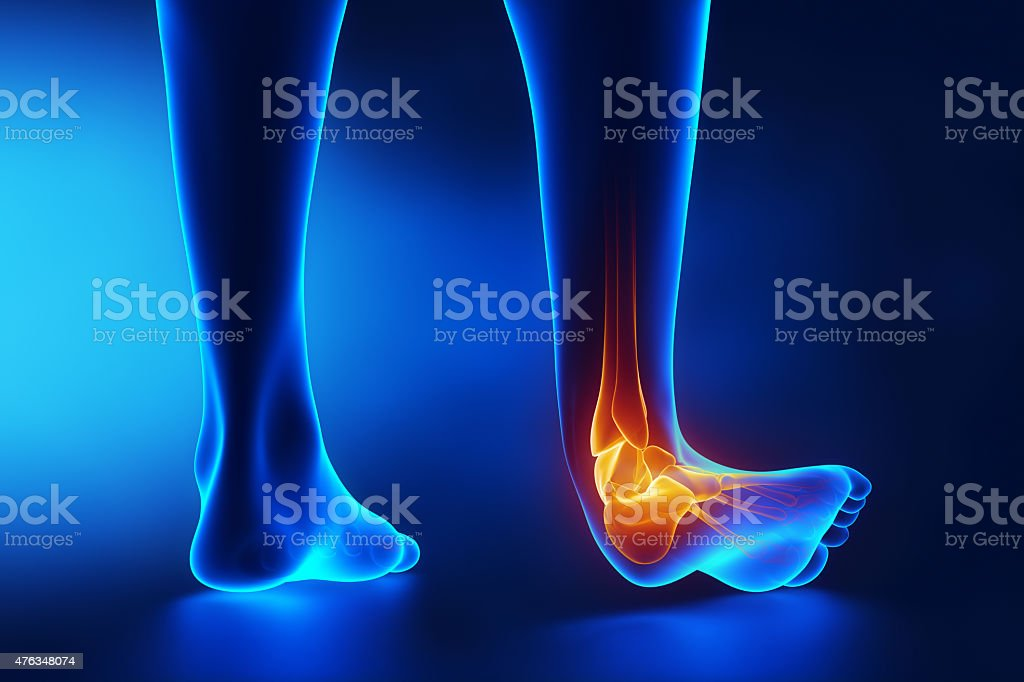 Sprained ankle blue x-ray stock photo