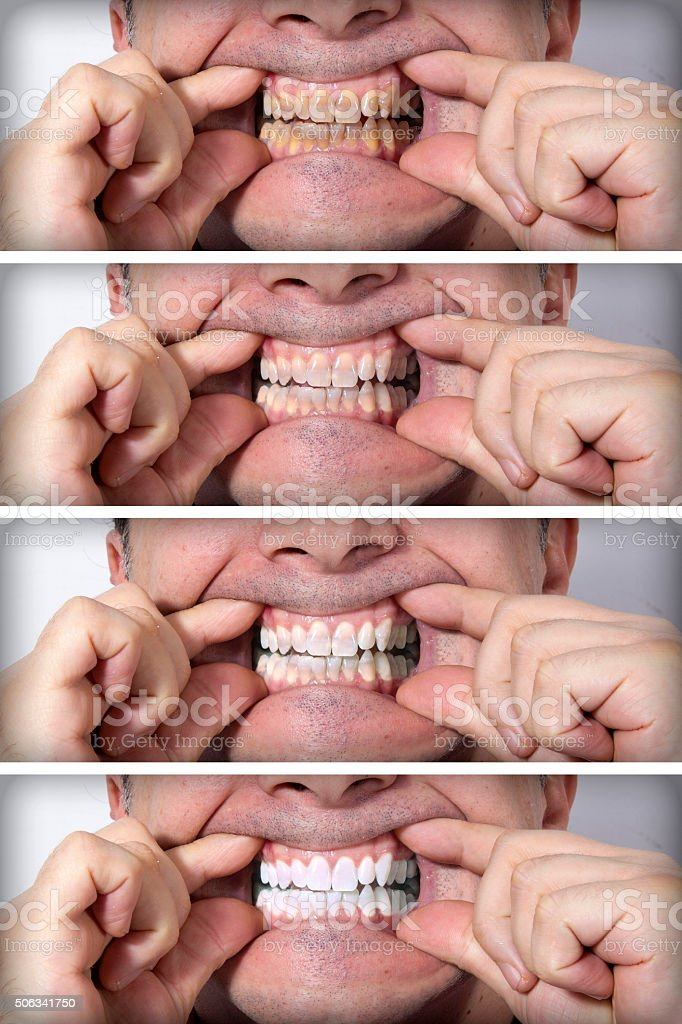 Stages of teeth whitening - BEFORE and AFTER royalty-free stock photo