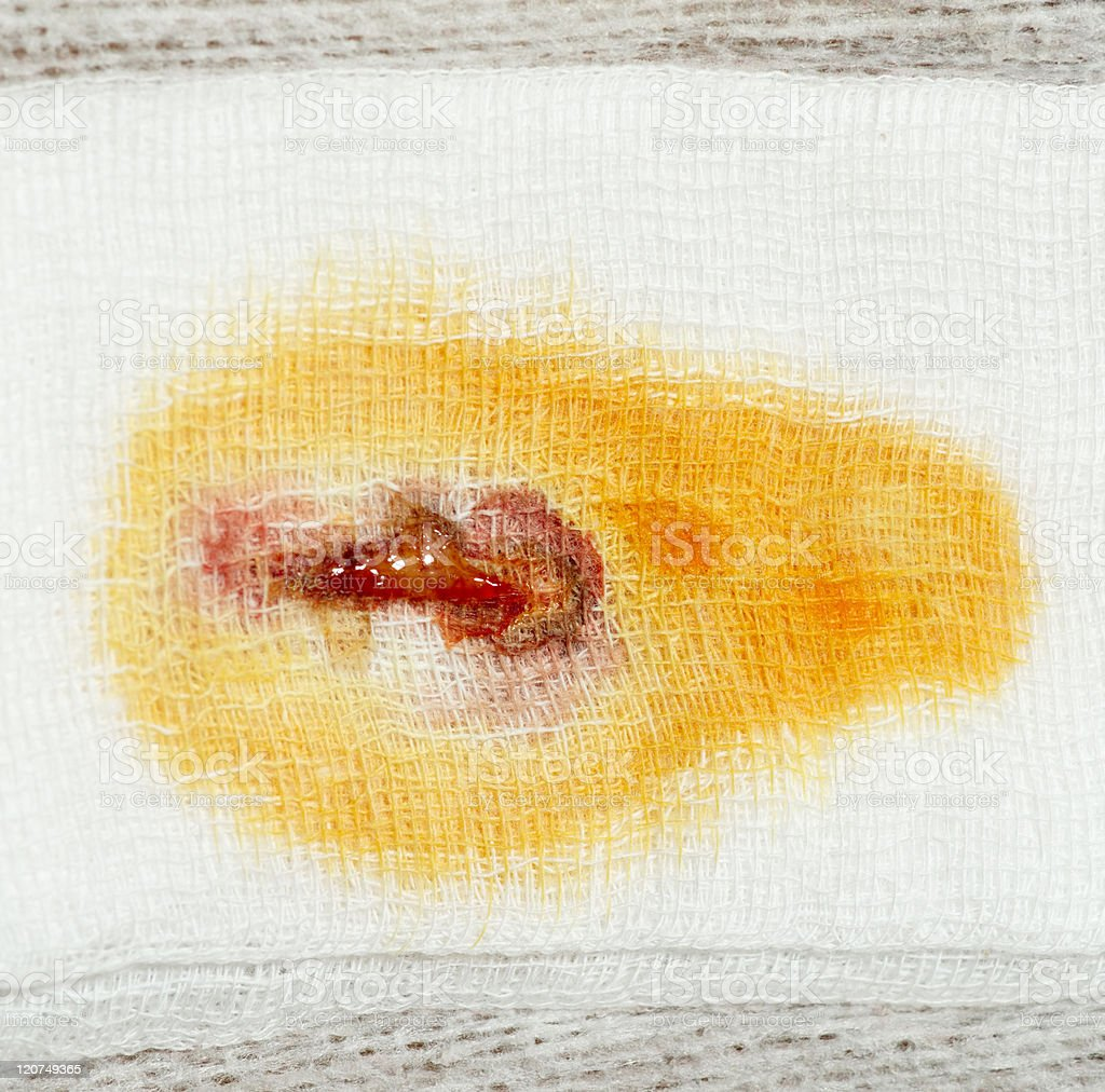 Stain of pus, blood and iodine royalty-free stock photo