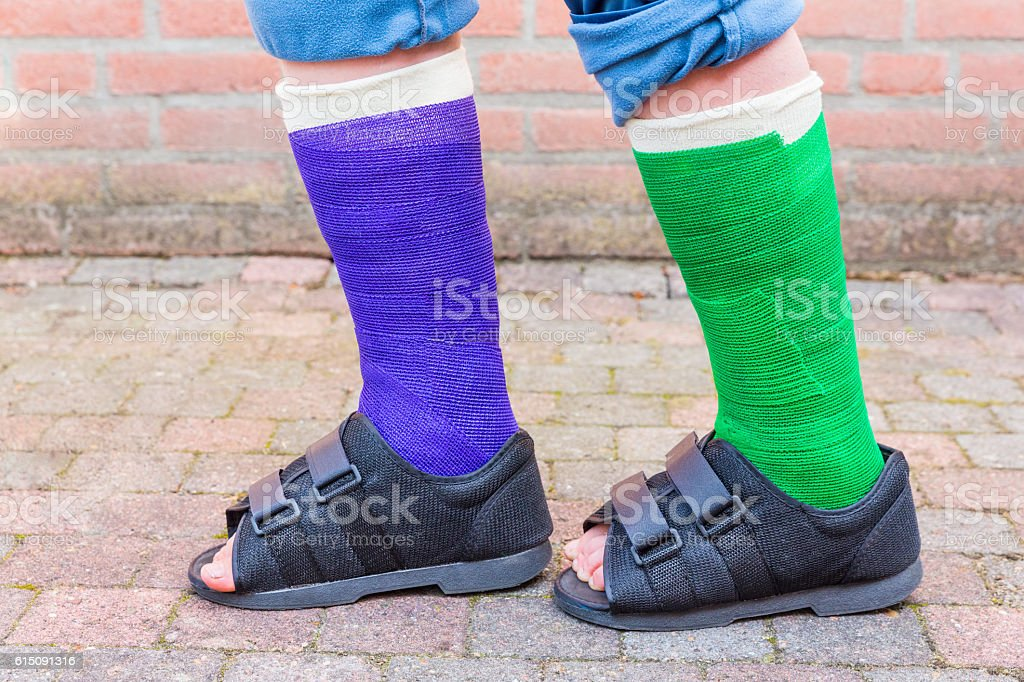 Standing boy with two colored gypsum legs stock photo