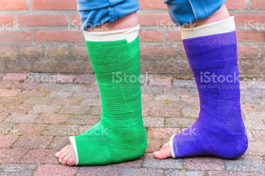 Standing child with two colorful gypsum legs stock photo