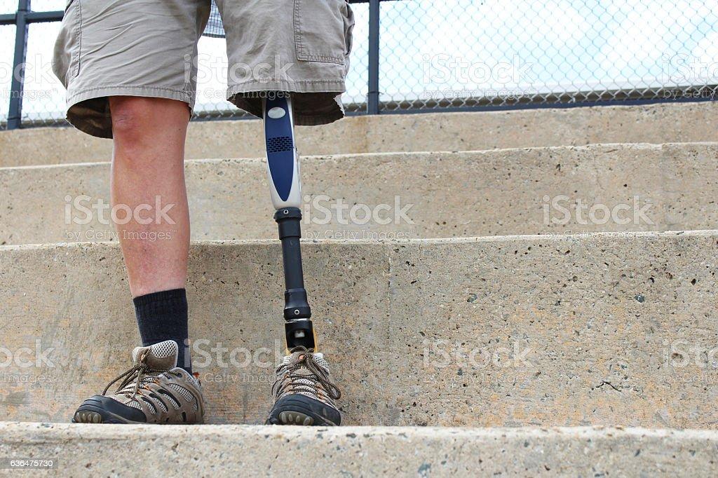 Standing man with prosthetic leg stock photo