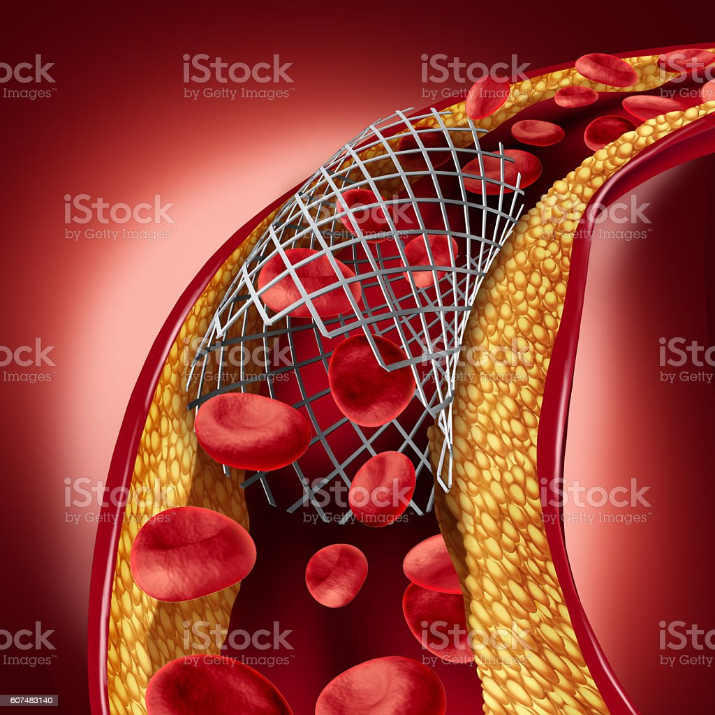 Stent Implant Concept stock photo