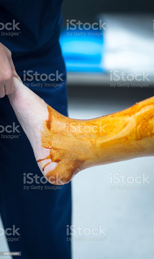 Sterilizing leg for orthopedic knee surgery stock photo