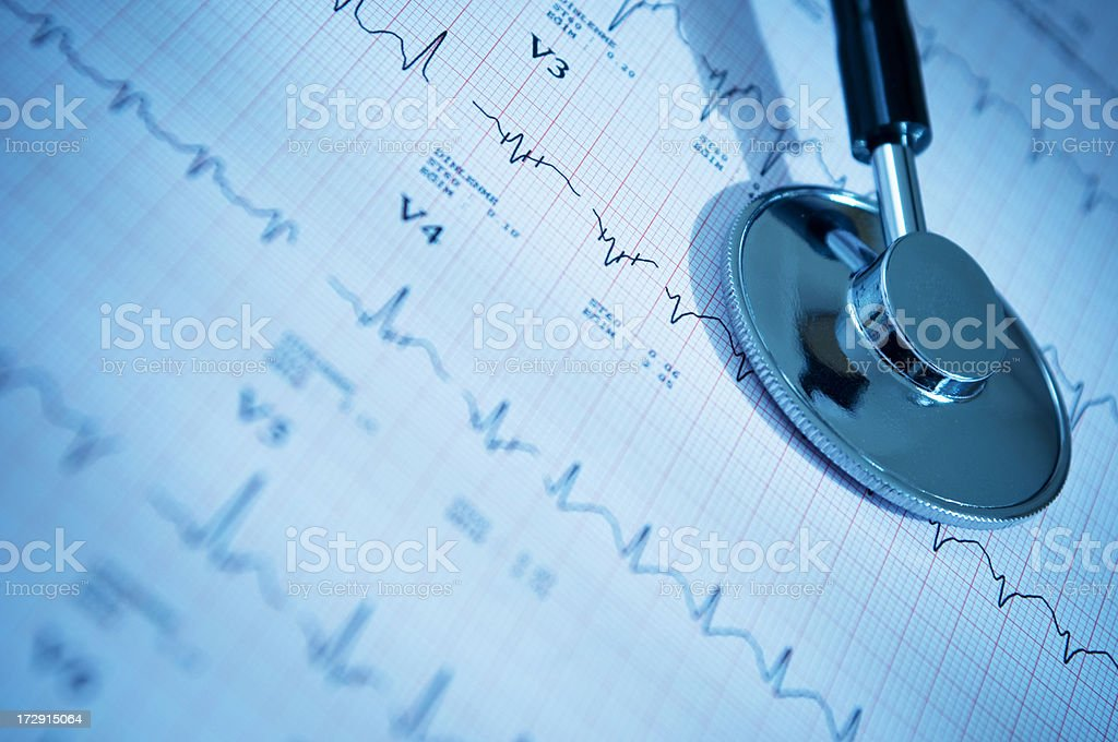 Stethoscope and charts with heart ecg graph royalty-free stock photo