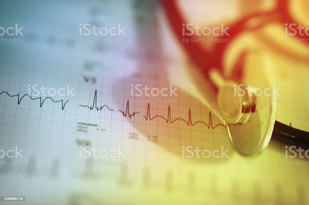 Stethoscope and charts with heart ecg graph stock photo