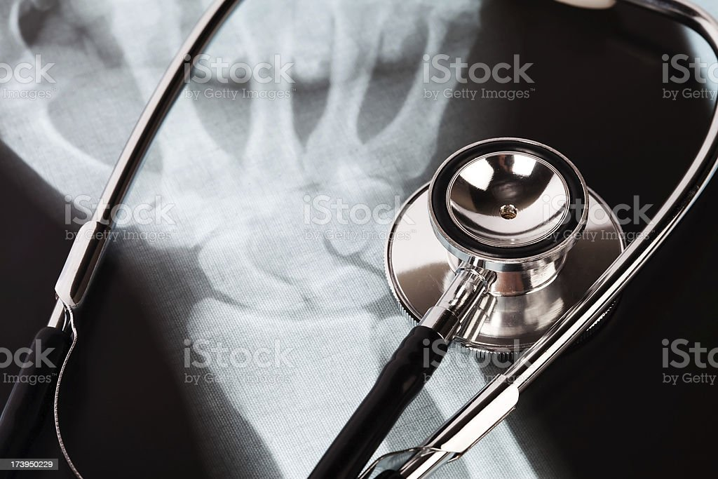 stethoscope and hand x-ray close up royalty-free stock photo