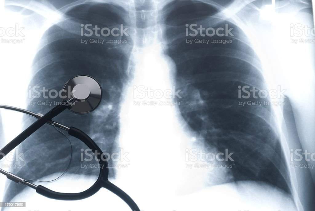 Stethoscope on a Chest Xray royalty-free stock photo
