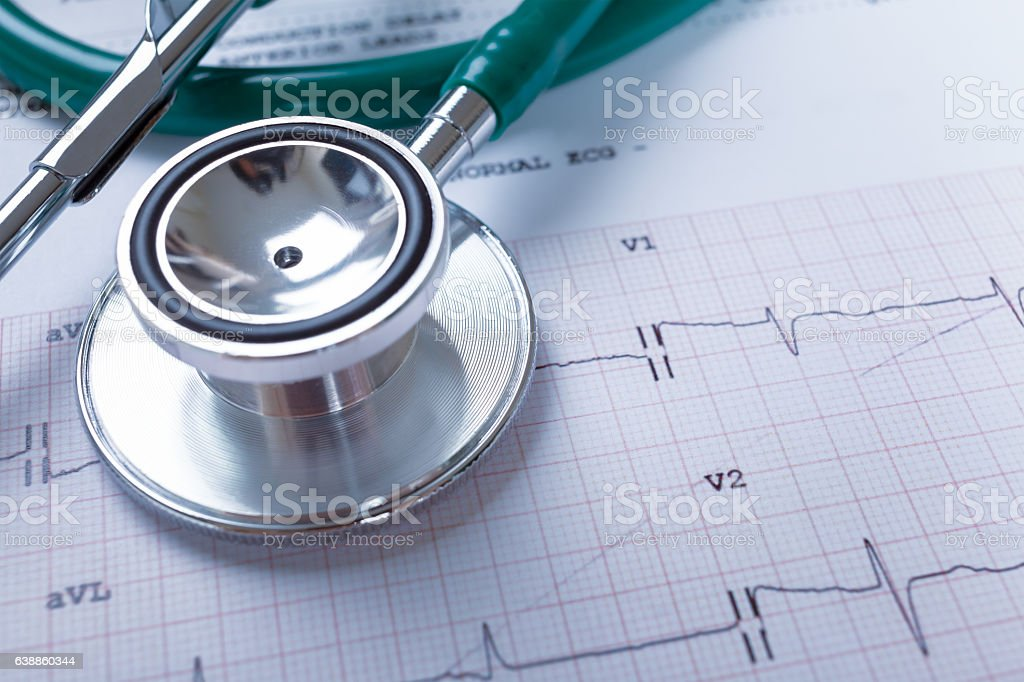 Stethoscope on an electrocardiogram (ECG) chart background stock photo
