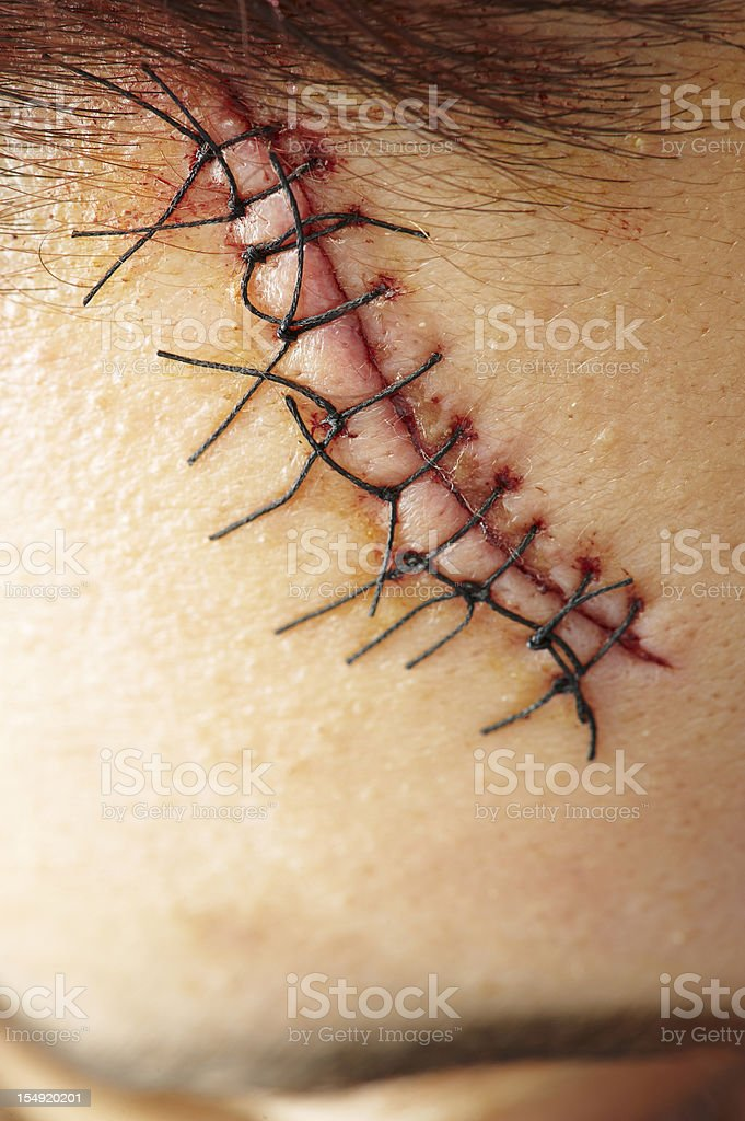 Stitches Close Up stock photo