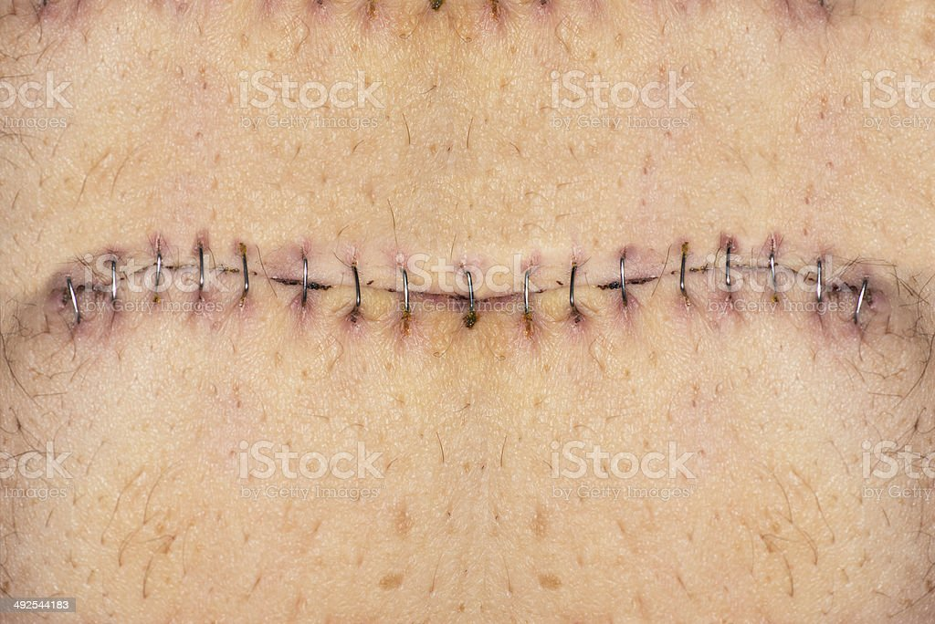 Stitches on belly stock photo