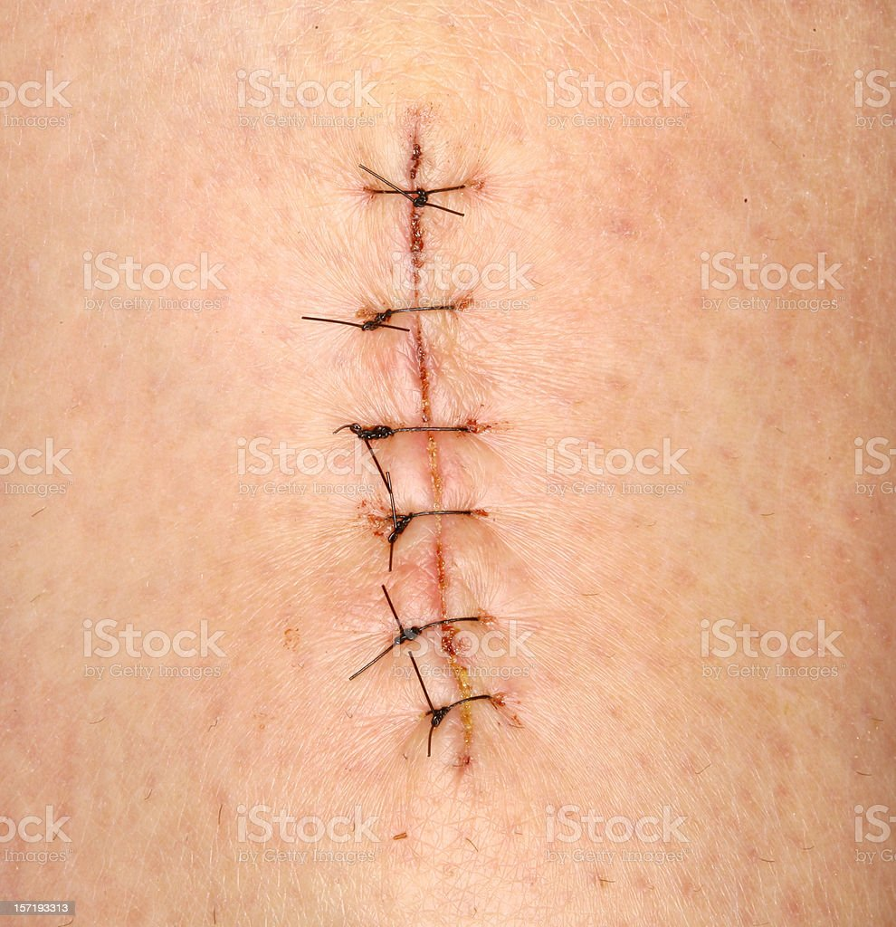 Stitches stock photo