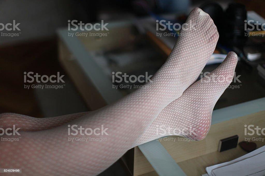 stockings torn heels stock photo