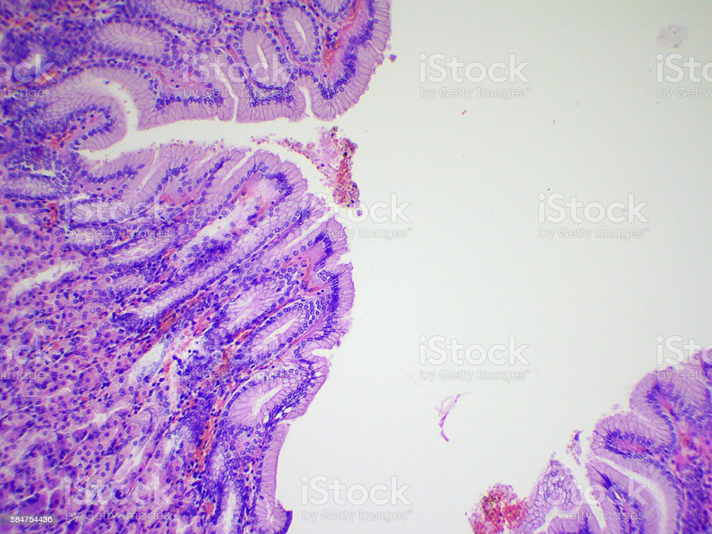 Stomach wall stock photo