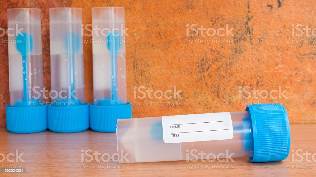 Stool sample jars with transport medium stock photo