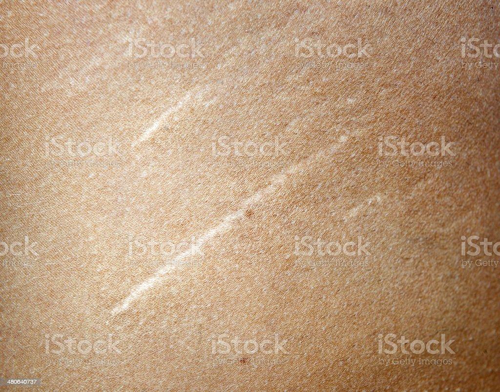 Striae gravidarum, Pregnancy Stretch Marks on female Skin (XXXL) stock photo