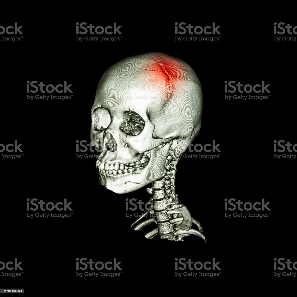 Stroke . CT scan with 3D image of human skull and cervical spine . oblique view . stock photo